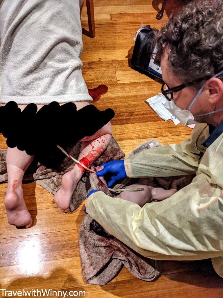 umbilical cord cutting 剪臍帶自然產natural birth